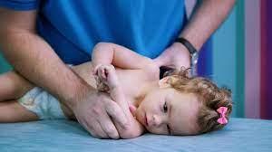 أسباب الشلل الدماغي عند الأطفال